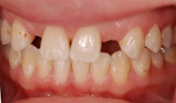 sudbury dentist dr martic bridge before