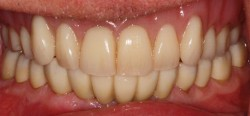 sudbury dentist dr martic crowns and implants after 1
