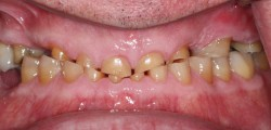 sudbury dentist dr martic crowns and implants before