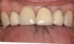 sudbury dentist dr martic dental implant after