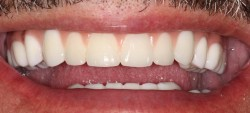 sudbury dentist dr martic fixed denture 1 inserted