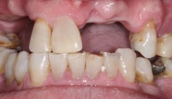 sudbury dentist dr martic implant rehabilitation before