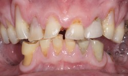 sudbury dentist dr martic rehabilitation before