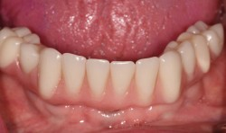 sudbury dentist dr martic screw retained denture on implants inserted